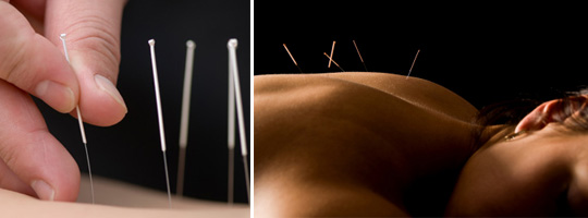 acupuncture-dry-needling