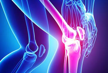 medcta-knee