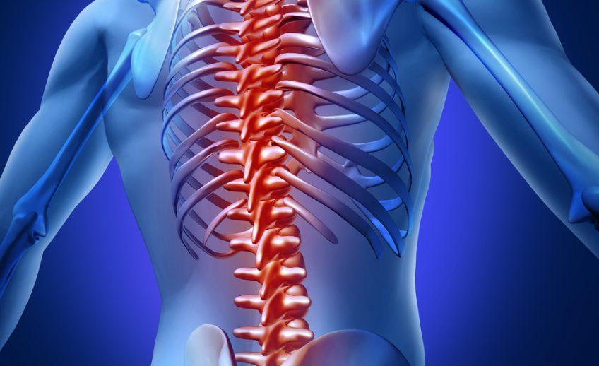 medium-back-pain-graphic-shutterstock_94752094